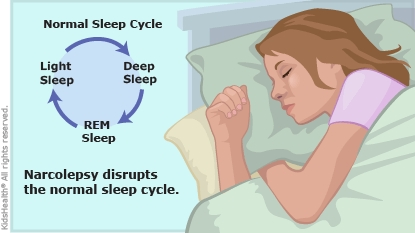 the causes symptoms and treatment of narcolepsy in older adults Narcolepsy is a nervous system problem that causes extreme sleepiness and attacks of daytime sleep  narcolepsy symptoms usually first occur between 15 and 30 years old below are the most common symptoms  there is no cure for narcolepsy however, treatment can help control symptoms.